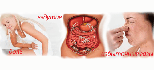 Симптомы кандидоза кишечника