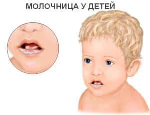 Грибковое поражен е полости рта