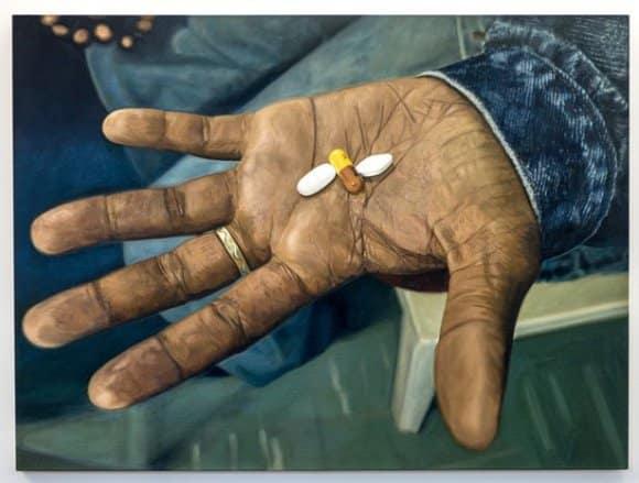 Борьба с болезнью: прием медикаментов